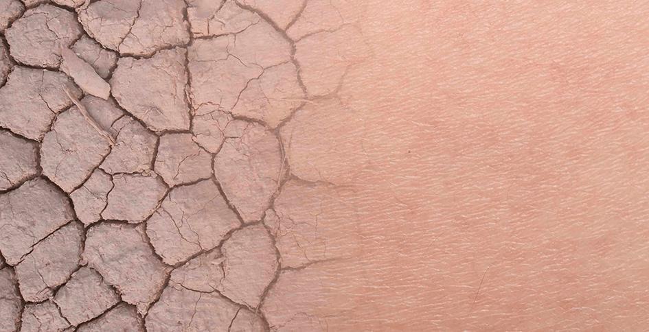 ¿Qué causa la piel seca?