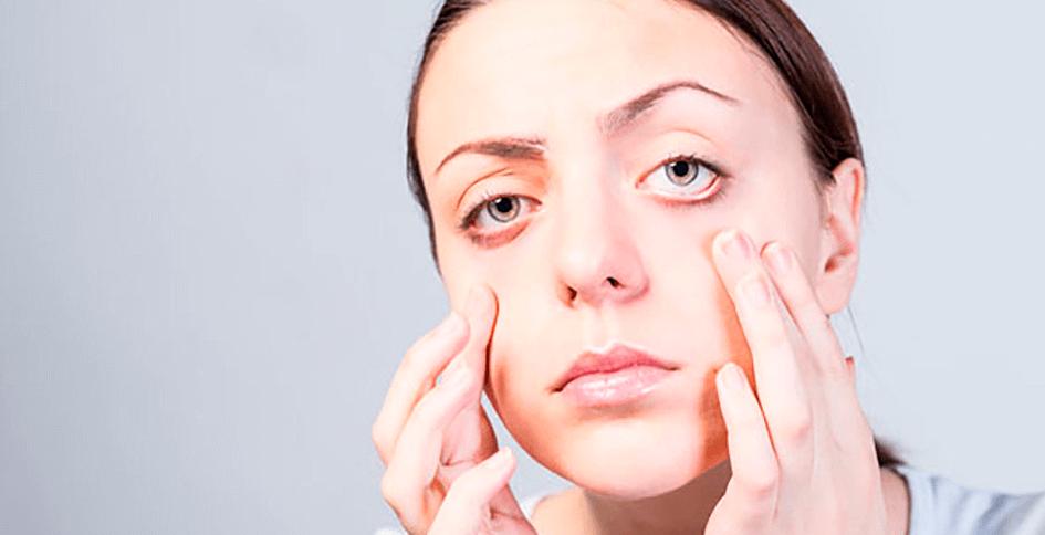¿Qué causa la piel flácida?